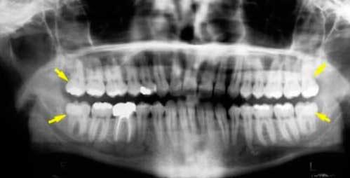 verstandskies  tandartspraktijk WELKOM in Arnhem
