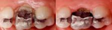 kroonverlenging   tandartspraktijk WELKOM in Arnhem