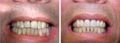 facing_veneer  cosmetische tandheelkunde tandartspraktijk WELKOM in Arnhem