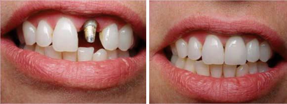 kroon cosmetische tandheelkunde tandartspraktijk WELKOM in Arnhem