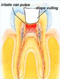 wortelkanaalbehandeling
