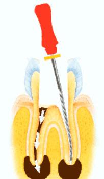 zenuwbehandeling  endodontologie tandartspraktijk WELKOM in Arnhem