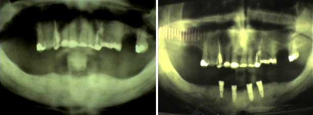 Implantologie16