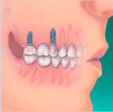 implantaat  tandartspraktijk WELKOM in Arnhem
