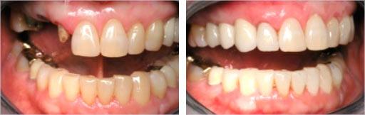 brug op implantaten  tandartspraktijk WELKOM in Arnhem