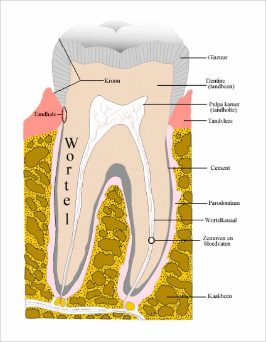 Caries tandbederf  tandartspraktijk WELKOM in Arnhem