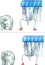 preventie tandenpoetsen praktijk WELKOM