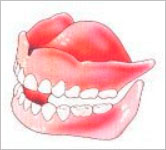 prothese kunstgebit  tandartspraktijk WELKOM in Arnhem