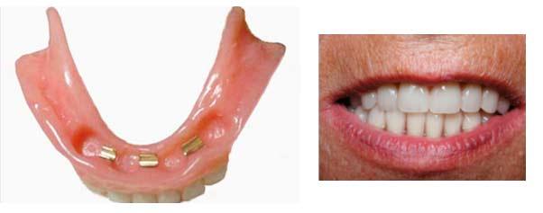 klikgebit prothese tandartspraktijk WELKOM in Arnhem
