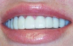 SnapOnSmile1 tandartspraktijk WELKOM in Arnhem