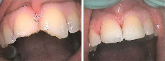 vulling cosmetische tandheelkunde tandartspraktijk WELKOM in Arnhem