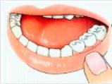 Preventie sealen tandarts in Arnhem