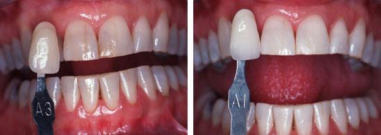 Tanden bleken  cosmetische tandheelkunde tandartspraktijk WELKOM in Arnhem